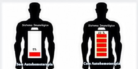 auto hemoterapia sistema imunologico
